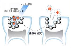 レーザーによる虫歯治療