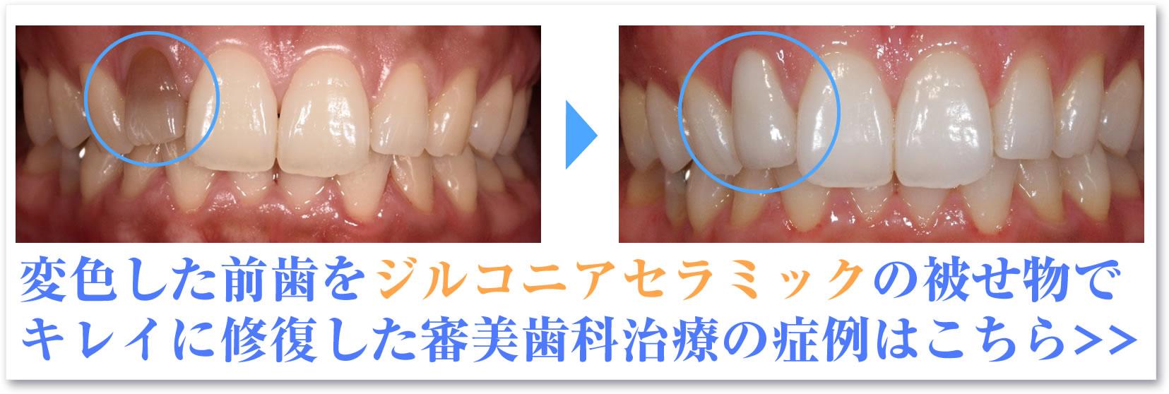 変色した前歯をジルコニアセラミックの被せ物で キレイに修復した審美歯科治療の症例はこちら>>
