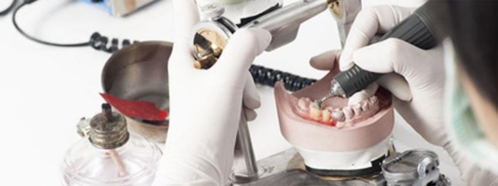 歯科補綴物製作工程