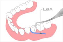 歯肉圧排(あっぱい)