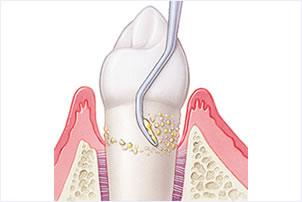 歯周病治療にこだわる