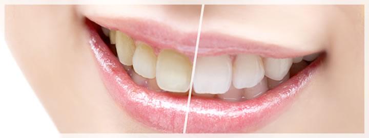 予防歯科と着色除去