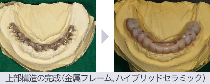 オールオン4インプラントの仮歯
