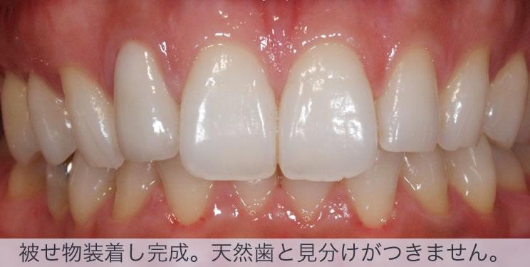 ジルコニアの前歯の被せ物