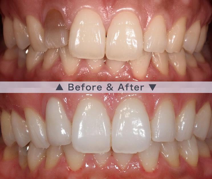 前歯の被せ物ビフォアフター