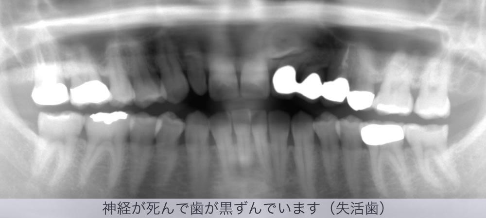 神経が死んで歯が黒ずんでいます(失活歯)