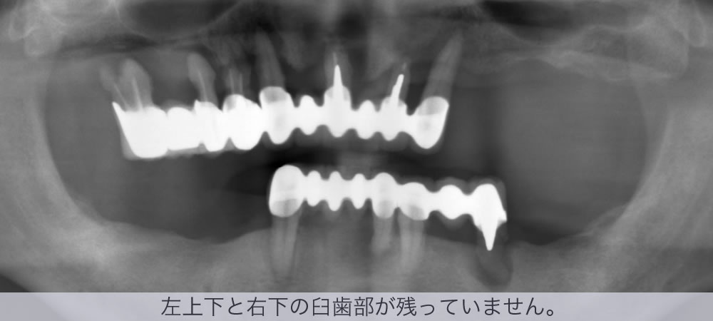 左上下と右下の臼歯部が残っていません。