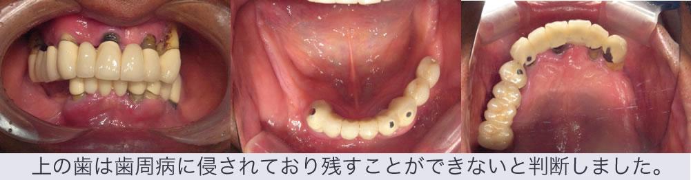 上の歯は歯周病に侵されており残せないと判断しました。
