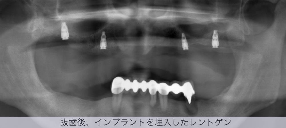 抜歯後、インプラントを埋入したレントゲン