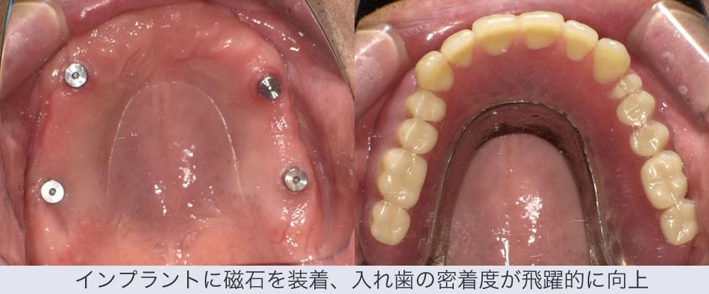 インプラントに磁石を装着、入れ歯の密着度が飛躍的に向上