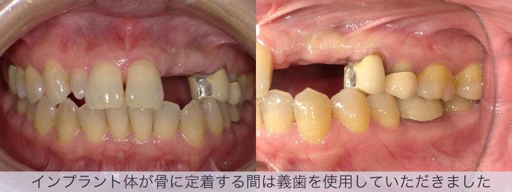 インプラント体が骨に定着する間は義歯を使用していただきました