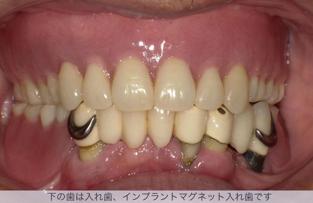 下の歯は入れ歯、インプラントマグネット入れ歯です