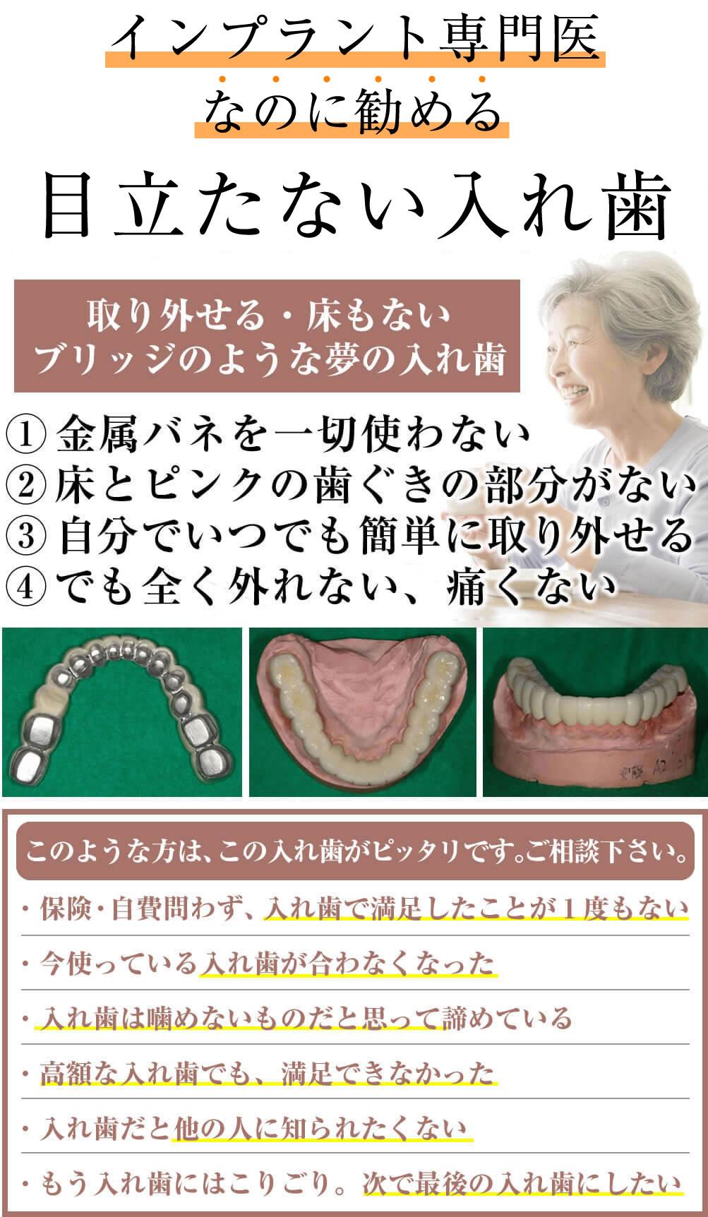 コバルトコーヌスクローネ入れ歯