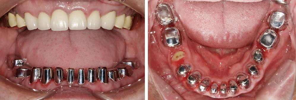 コーヌスクローネ入れ歯