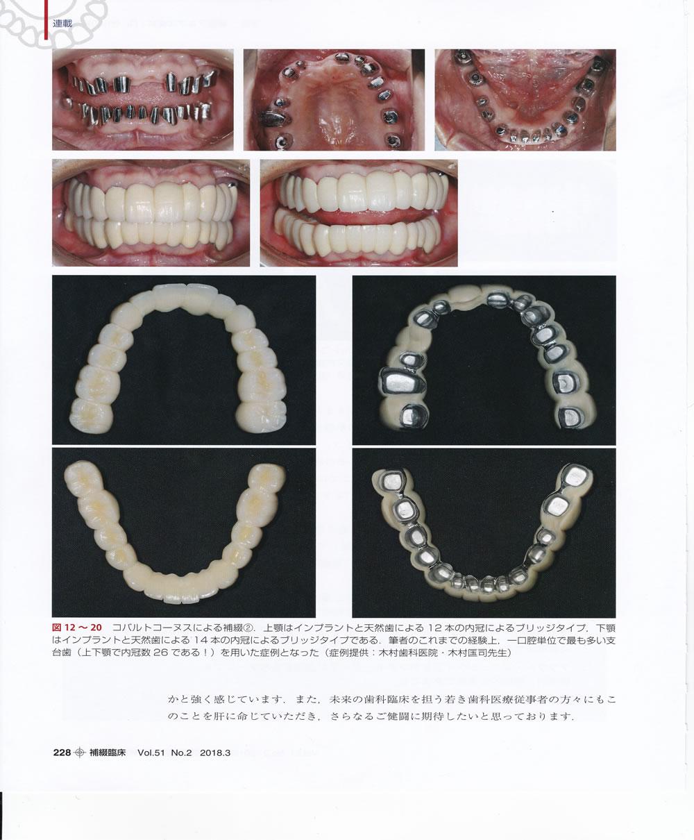 コバルトコーヌスクローネ義歯症例説明