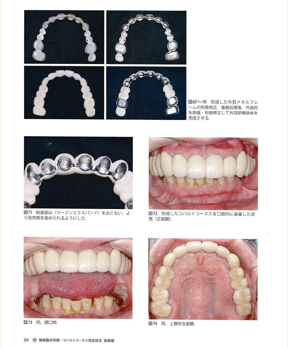 コバルトコーヌスクローネ義歯症例